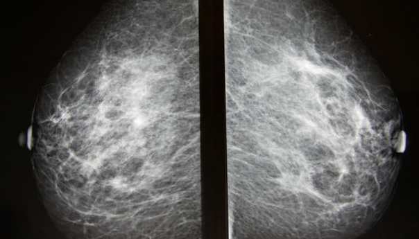 Smoking Increases Risk Breast Cancer